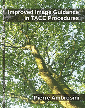 Improved-Image-Guidance-in-TACE-Procedures 300x380